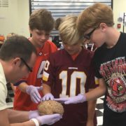 boys touch brain in science class